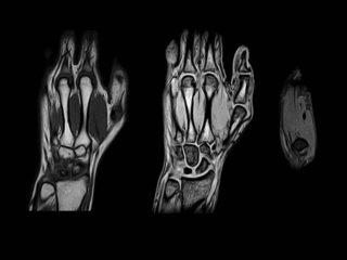 Магнитно-резонансная томография кистей рук. МРТ кисти