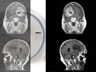 МРТ носовых пазух