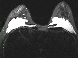 разрывы импланты молочных желез