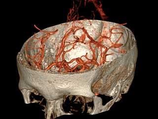 (МСКТ) основания черепа