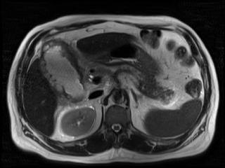(МРТ) поджелудочной железы