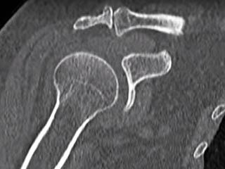 Мультисрезовая компьютерная томография предплечья
